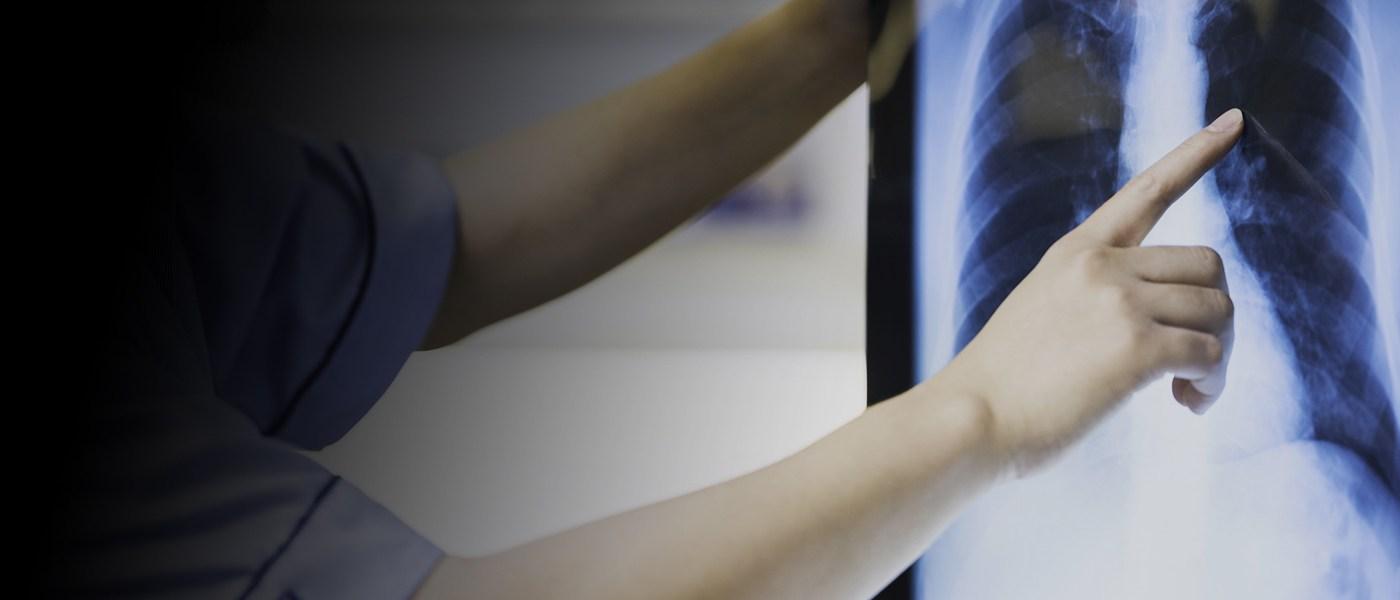 Study Bachelor of Medical Radiation Science (Medical Imaging